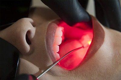 Laserterapia odontológica em São Carlos