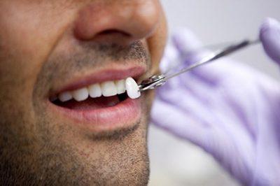 Lente dental em São Carlos